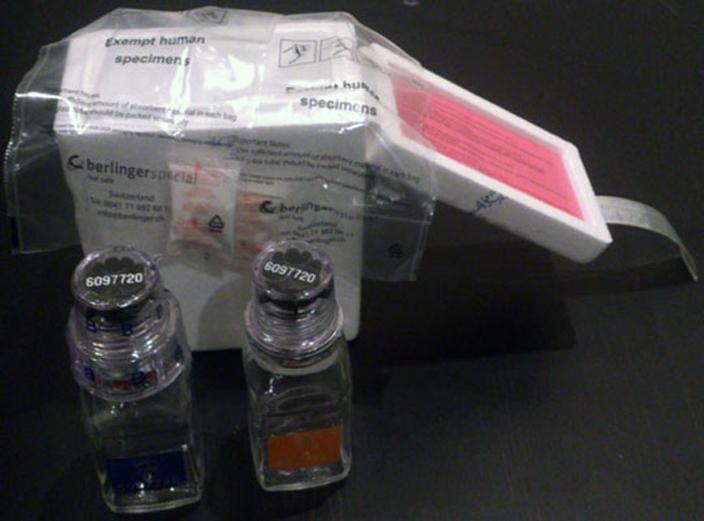 Pungi transport sticluțele de urină